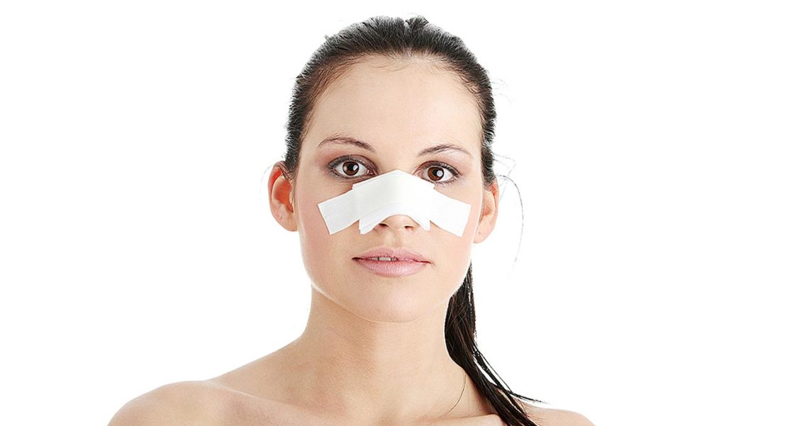 Cuánto tarda en sanar una fractura de nariz