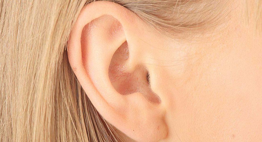 colesteastoma del oído