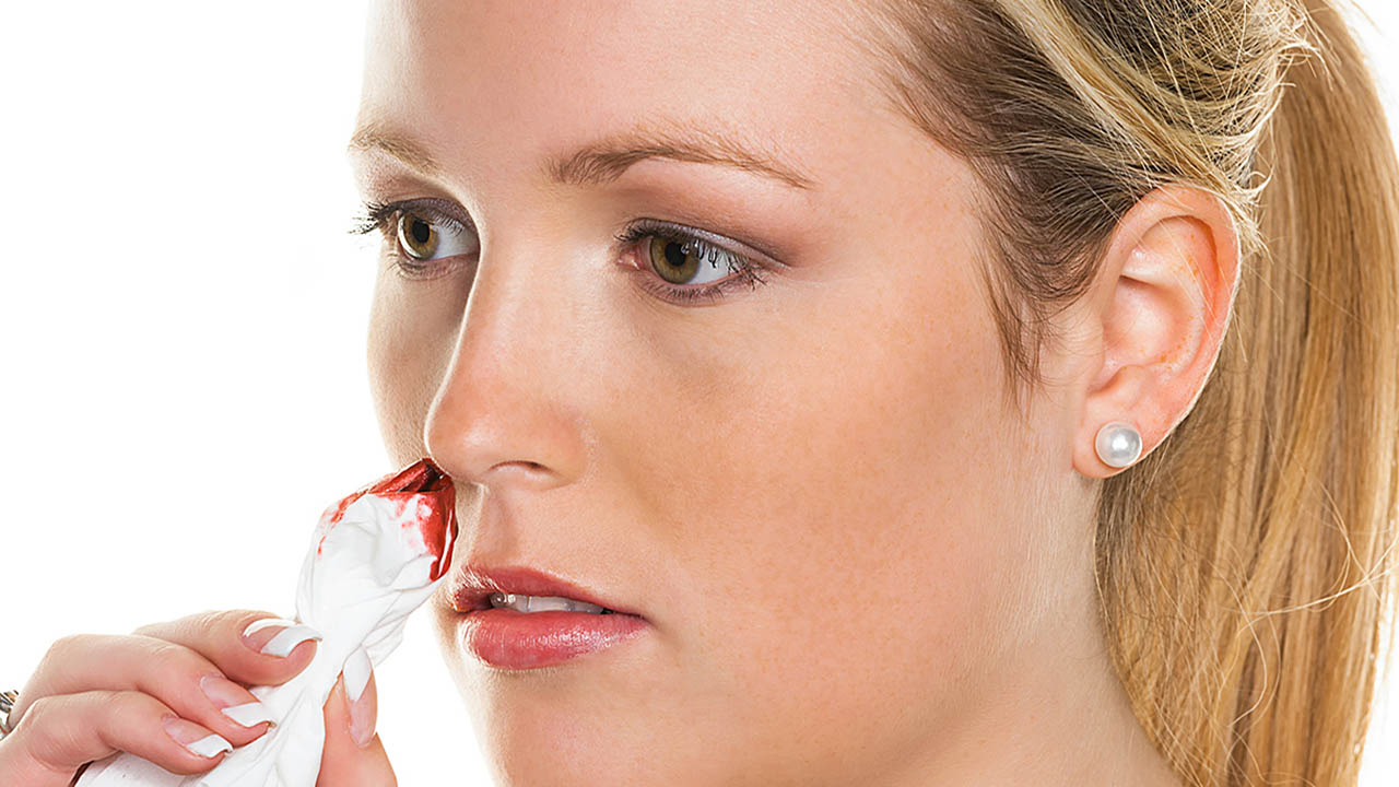 Qué es la epistaxis nasal