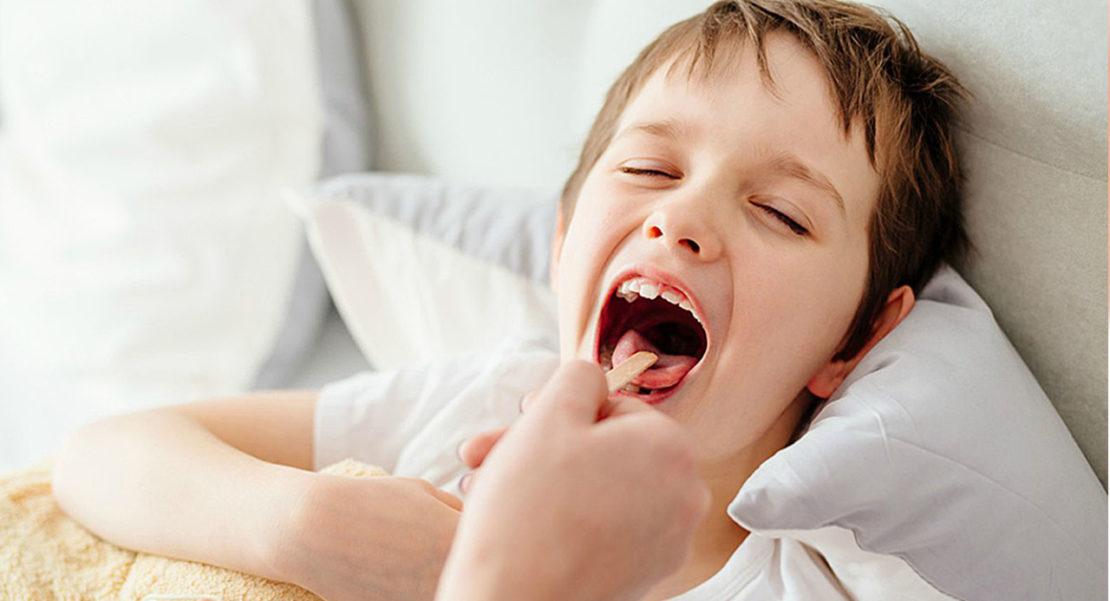 Qué es bueno para la laringitis en niños