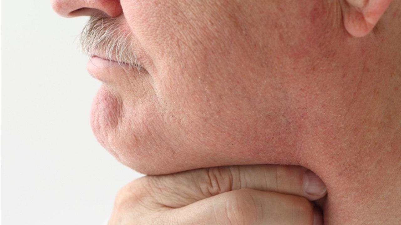 Por qué puede arder la garganta después de fumar mucho